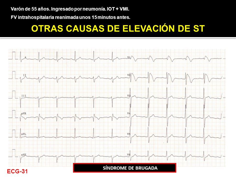 Varón de 55 años. Ingresado por neumonía. IOT + VMI. FV intrahospitalaria reanimada unos 15 minutos antes. CASO 9 SÍNDROME DE BRUGADA ECG-31 OTRAS CAU