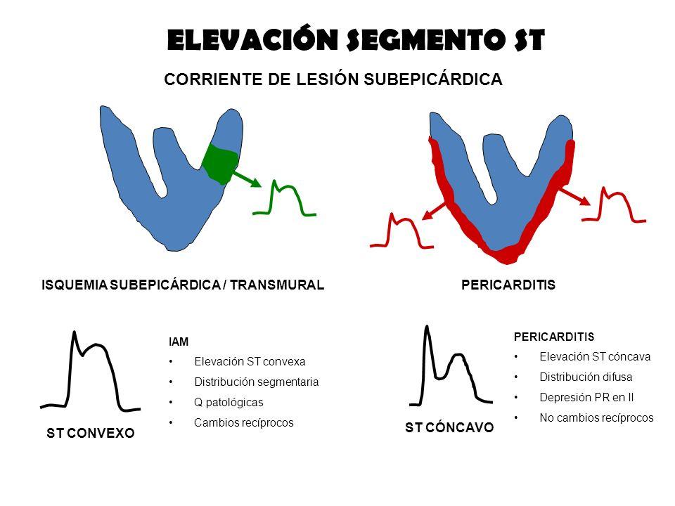 CORRIENTE DE LESIÓN SUBEPICÁRDICA ISQUEMIA SUBEPICÁRDICA / TRANSMURALPERICARDITIS ST CONVEXO ELEVACIÓN SEGMENTO ST ST CÓNCAVO IAM Elevación ST convexa