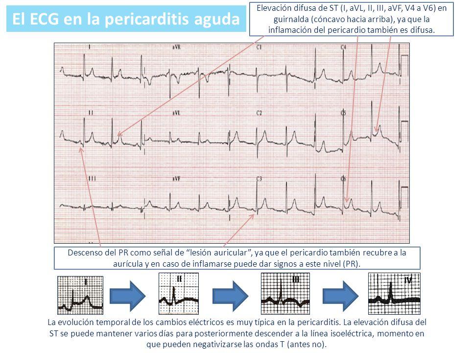 Elevación difusa de ST (I, aVL, II, III, aVF, V4 a V6) en guirnalda (cóncavo hacia arriba), ya que la inflamación del pericardio también es difusa. De