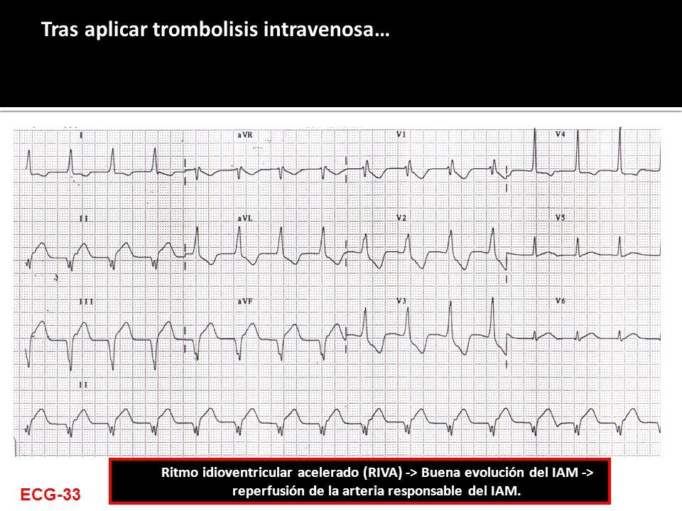 Tras aplicar trombolisis intravenosa… ECG-33 Ritmo idioventricular acelerado (RIVA) -> Buena evolución del IAM -> reperfusión de la arteria responsabl