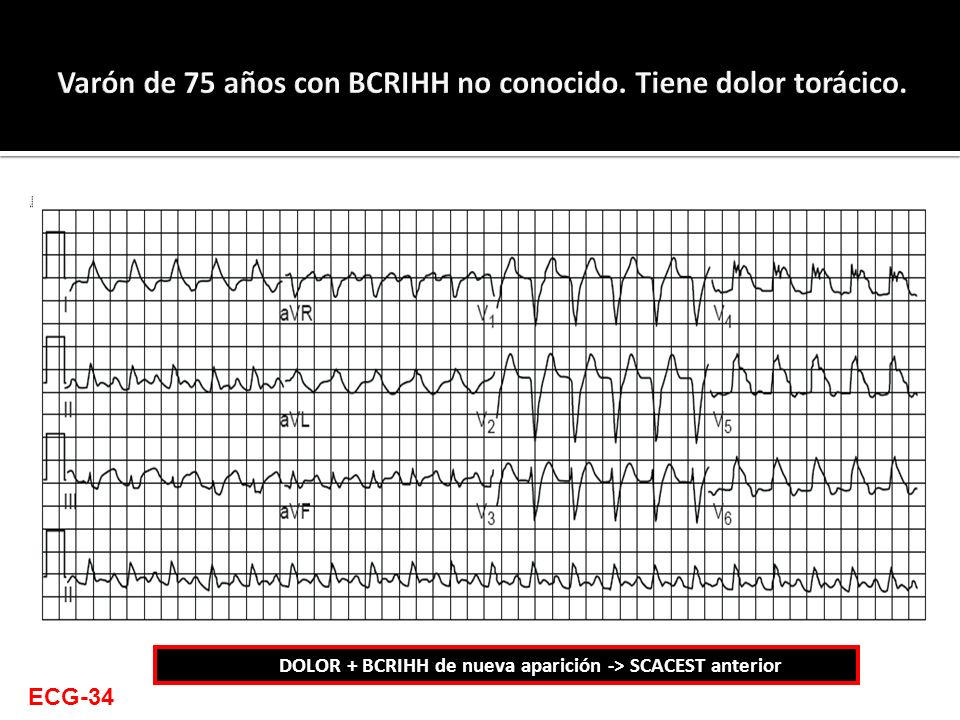ECG-34 DOLOR + BCRIHH de nueva aparición -> SCACEST anterior