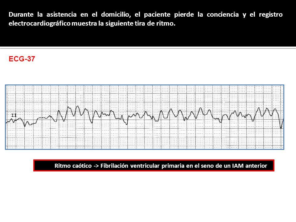 Durante la asistencia en el domicilio, el paciente pierde la conciencia y el registro electrocardiográfico muestra la siguiente tira de ritmo. Ritmo c