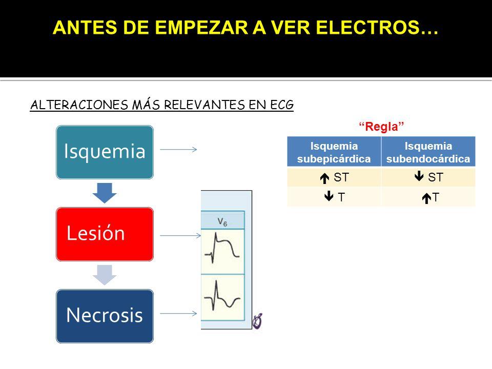 ALTERACIONES MÁS RELEVANTES EN ECG IsquemiaLesiónNecrosis Isquemia subepicárdica Isquemia subendocárdica ST T T Regla ANTES DE EMPEZAR A VER ELECTROS…