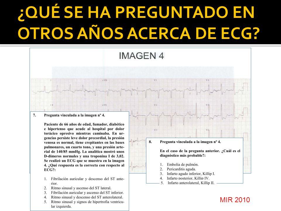 ¿QUÉ SE HA PREGUNTADO EN OTROS AÑOS ACERCA DE ECG? MIR 2010