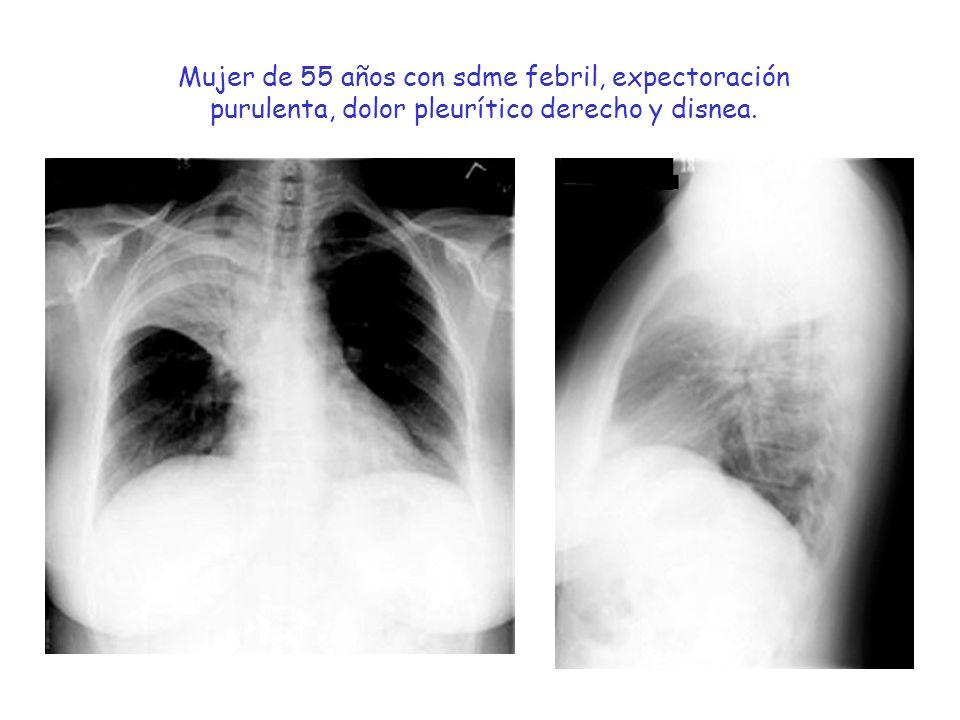 Mujer de 55 años con sdme febril, expectoración purulenta, dolor pleurítico derecho y disnea.