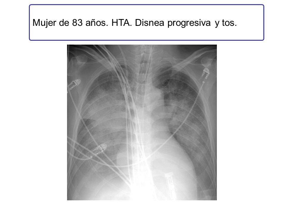 Mujer de 83 años. HTA. Disnea progresiva y tos.