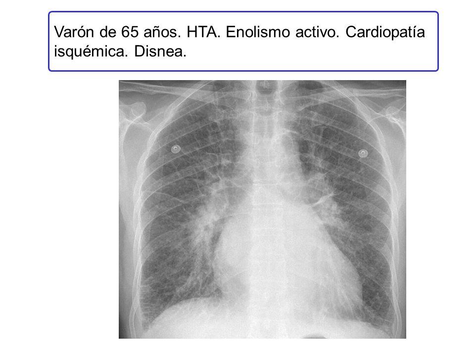 Varón de 65 años. HTA. Enolismo activo. Cardiopatía isquémica. Disnea.