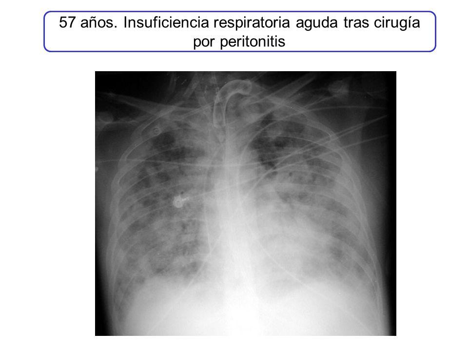 57 años. Insuficiencia respiratoria aguda tras cirugía por peritonitis