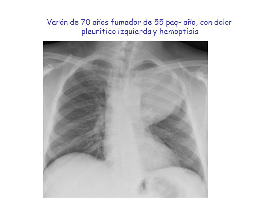 Varón de 70 años fumador de 55 paq- año, con dolor pleurítico izquierda y hemoptisis
