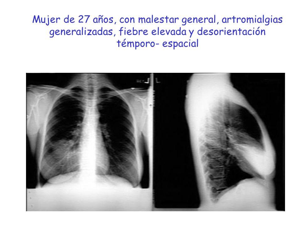 1.TBC miliar.2.Infección por Pn. jirovecii. 3.Criptococcosis 4.Aspergilosis pulmonar invasiva.