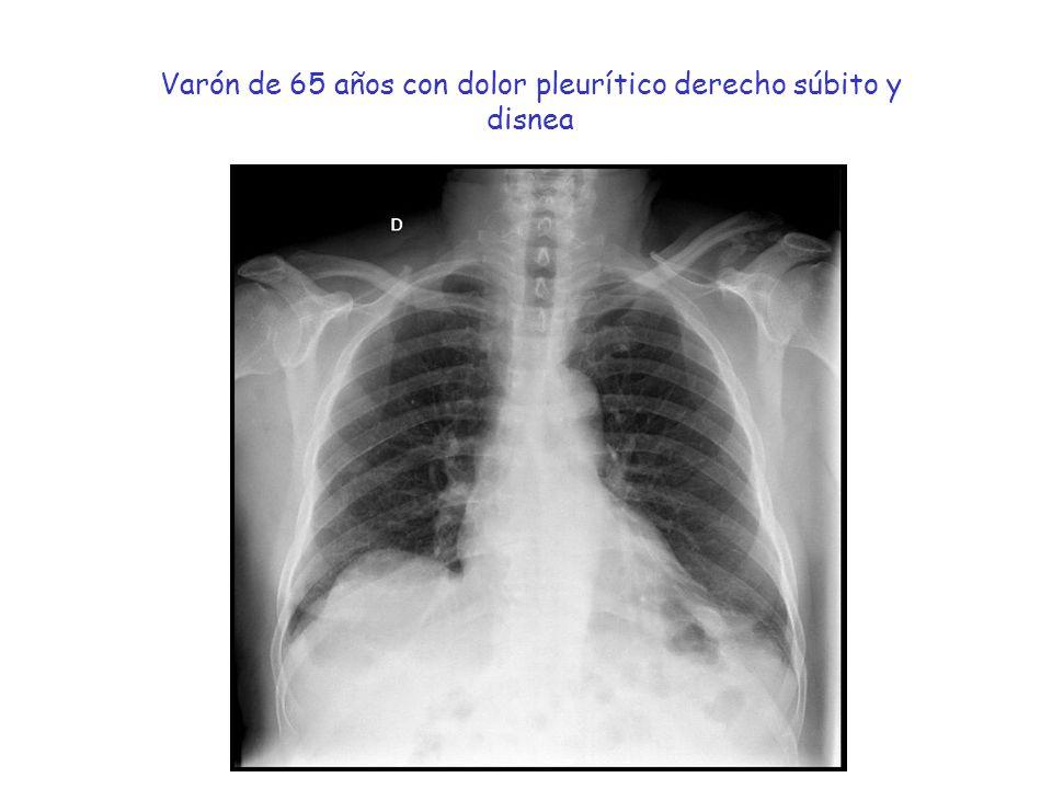 Varón de 65 años con dolor pleurítico derecho súbito y disnea