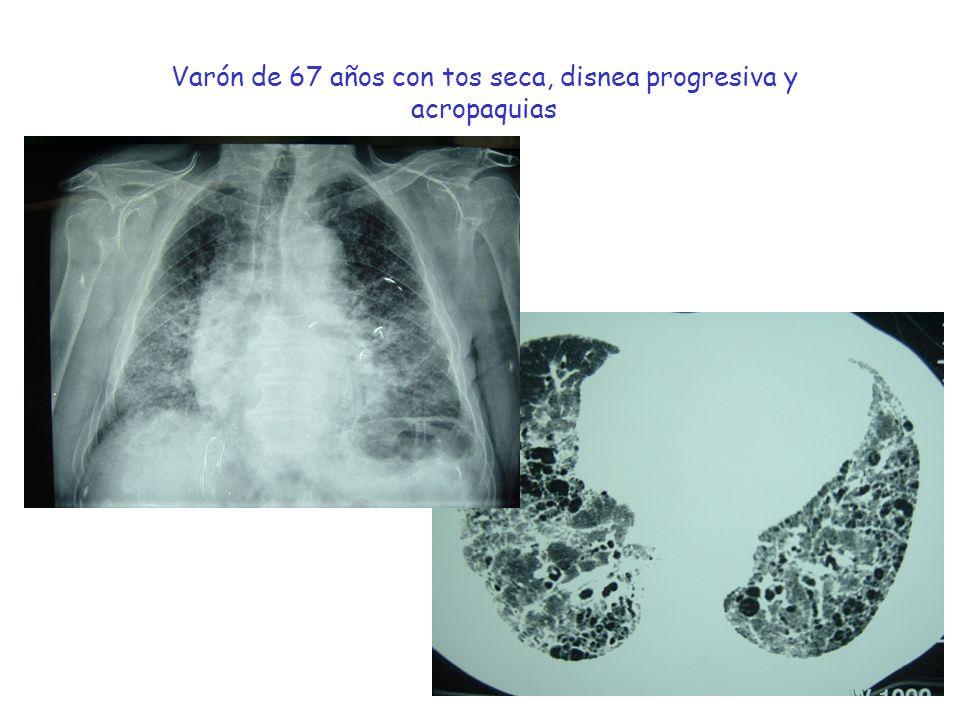 Varón de 67 años con tos seca, disnea progresiva y acropaquias