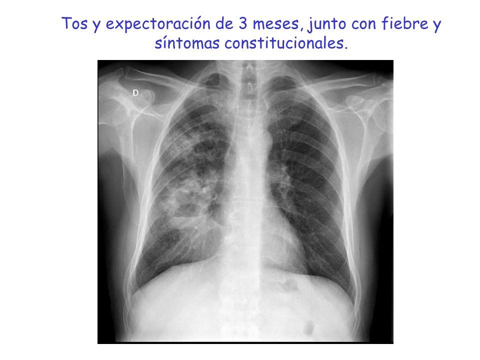 Supervivencia 5 años Estadio I : 55 - 75 % Estadio II: 30 - 50 % Estadio IIIa :10 - 25 % Estadio IIIb: < 5 % Estadificación carcinoma broncogénico.