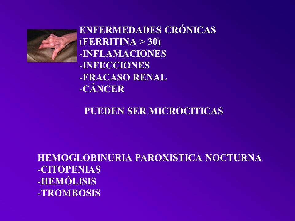 OTRAS MICROCITOSIS TALASEMIA CLINICA GRAVE NIÑOS FERRITINA > 50 DIANOCITOS – P.BAS ELECTROFORESIS HB SEUDOPOLIGLOBULIA 6mill Ht; Hb 11; VCM 70 SIDEROBLASTICA ALCOHOL – ISONIACIDA – PLOMO FERRITINA > 50 B6