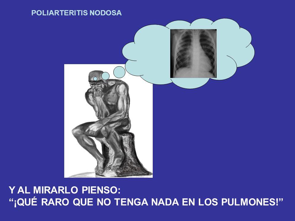 POLIARTERITIS NODOSA Y AL MIRARLO PIENSO: ¡QUÉ RARO QUE NO TENGA NADA EN LOS PULMONES!