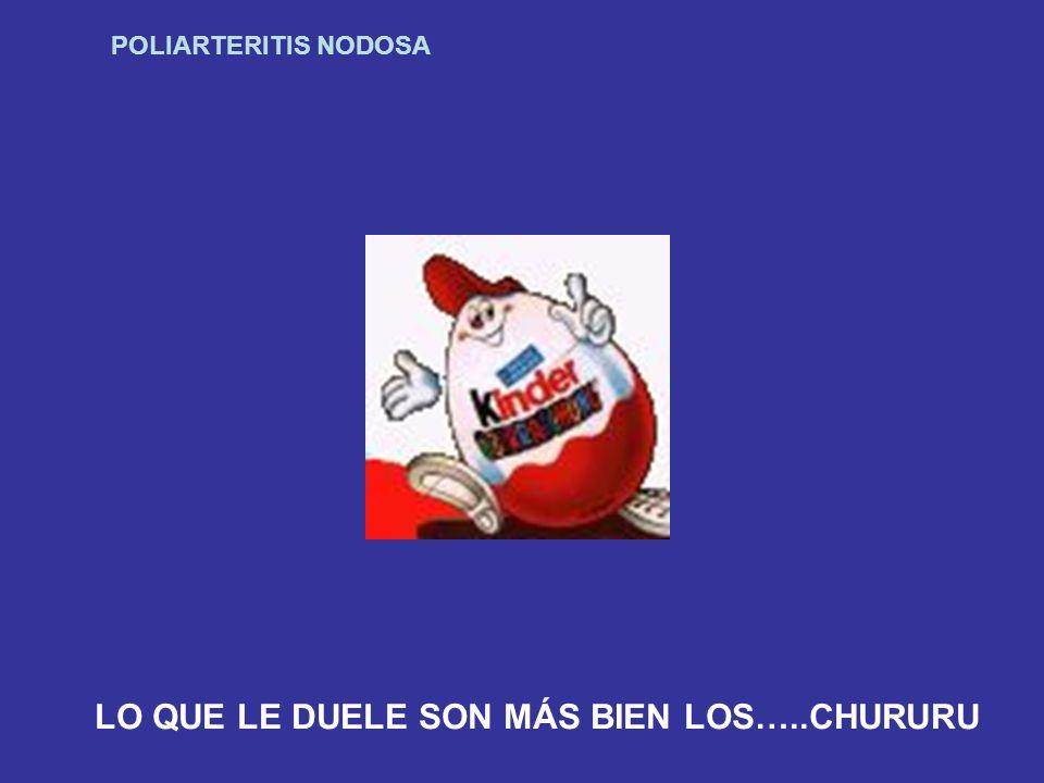 POLIARTERITIS NODOSA LO QUE LE DUELE SON MÁS BIEN LOS…..CHURURU