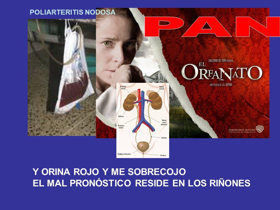 POLIARTERITIS NODOSA Y ORINA ROJO Y ME SOBRECOJO EL MAL PRONÓSTICO RESIDE EN LOS RIÑONES