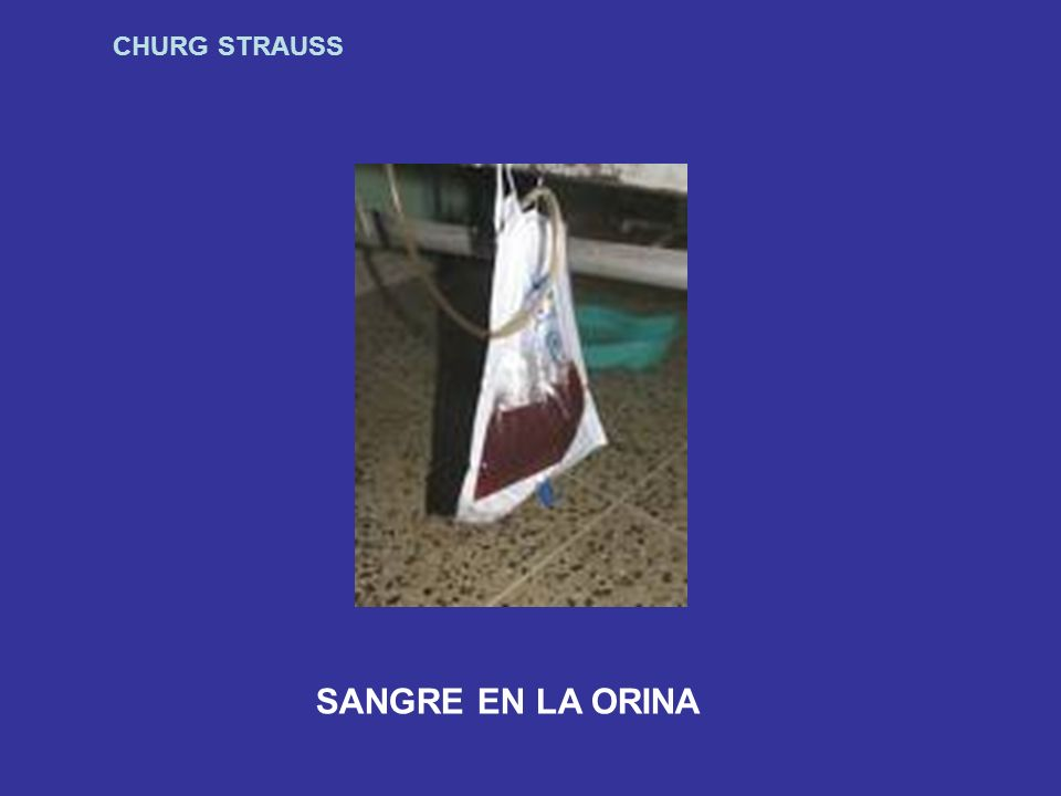 CHURG STRAUSS SANGRE EN LA ORINA