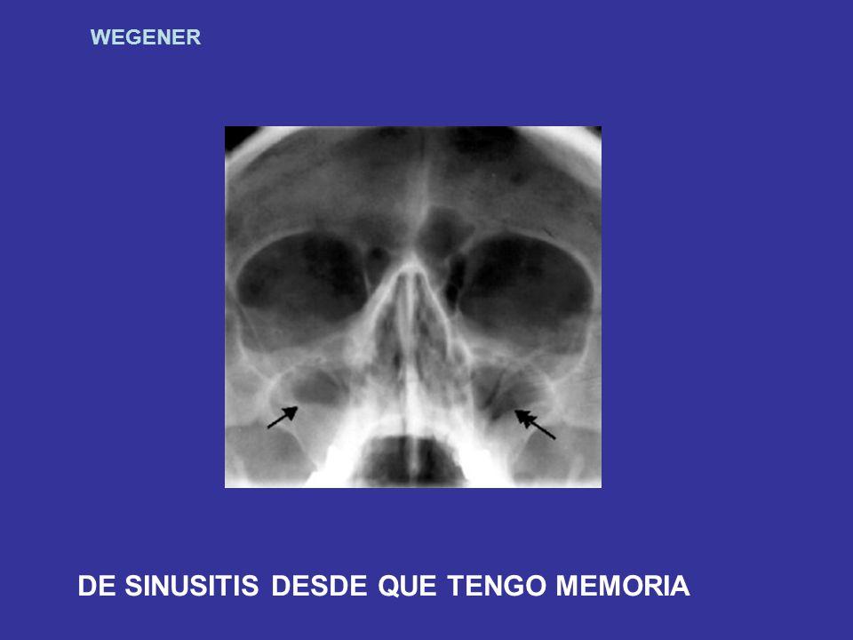 WEGENER DE SINUSITIS DESDE QUE TENGO MEMORIA