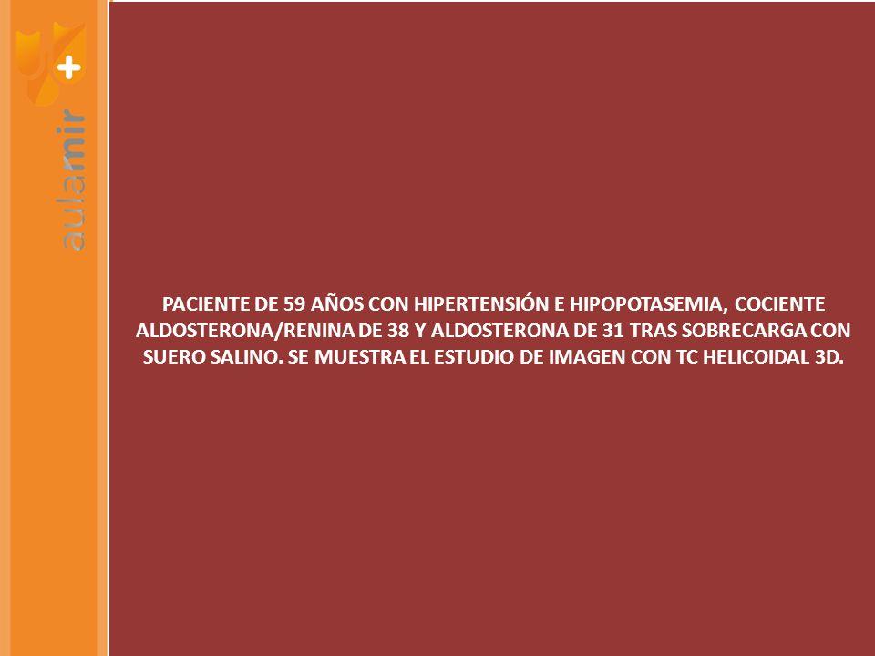 PACIENTE DE 59 AÑOS CON HIPERTENSIÓN E HIPOPOTASEMIA, COCIENTE ALDOSTERONA/RENINA DE 38 Y ALDOSTERONA DE 31 TRAS SOBRECARGA CON SUERO SALINO. SE MUEST