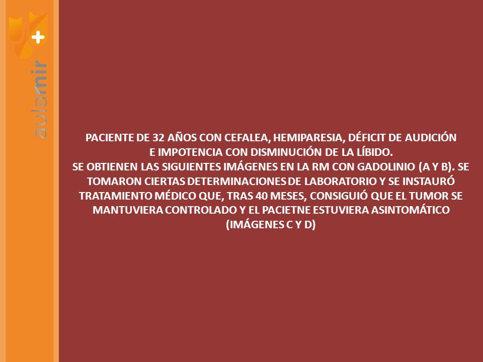 PACIENTE DE 32 AÑOS CON CEFALEA, HEMIPARESIA, DÉFICIT DE AUDICIÓN E IMPOTENCIA CON DISMINUCIÓN DE LA LÍBIDO. SE OBTIENEN LAS SIGUIENTES IMÁGENES EN LA