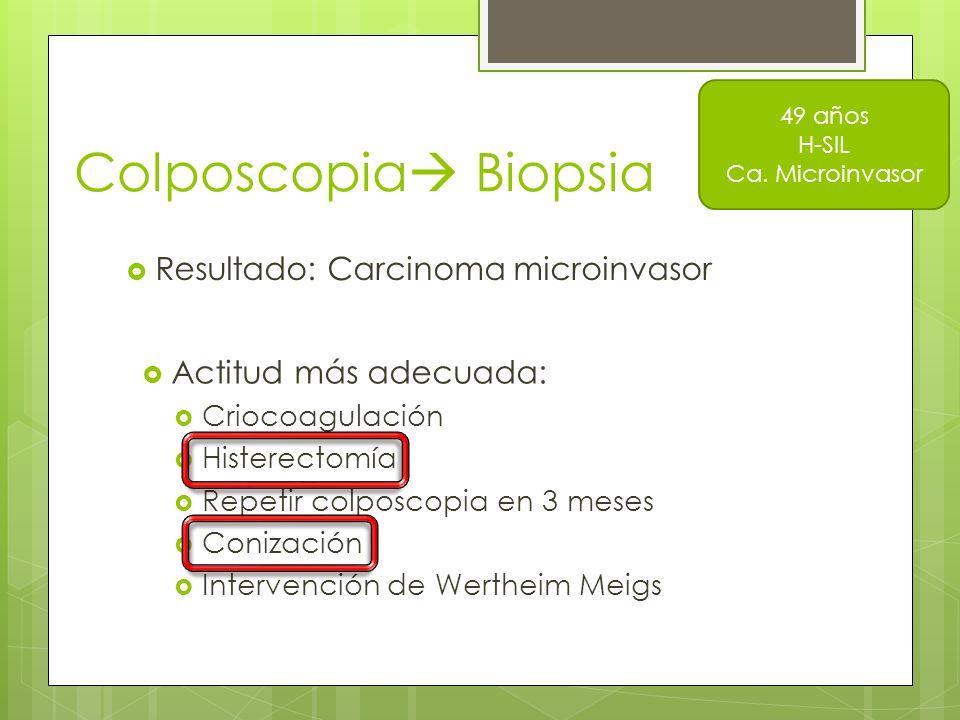Colposcopia Biopsia Resultado: Carcinoma microinvasor 49 años H-SIL Ca. Microinvasor Actitud más adecuada: Criocoagulación Histerectomía Repetir colpo