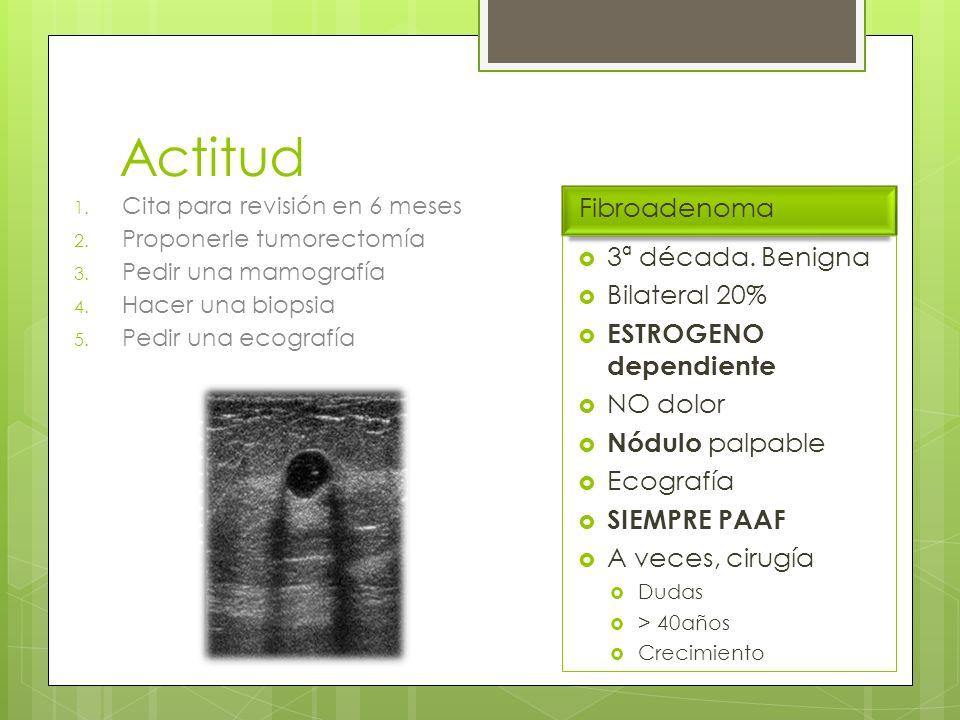 Clasificación cáncer endometrio Estadio 0: Hiperplasia atípica.