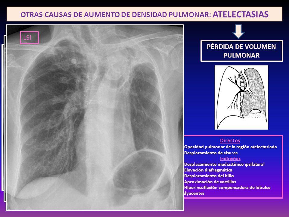 OTRAS CAUSAS DE AUMENTO DE DENSIDAD PULMONAR: ATELECTASIAS PÉRDIDA DE VOLUMEN PULMONAR Directos Opacidad pulmonar de la región atelectasiada Desplazam