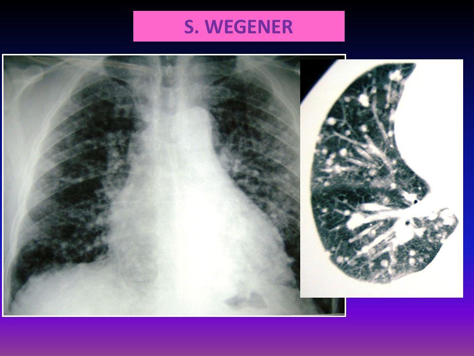 S. WEGENER
