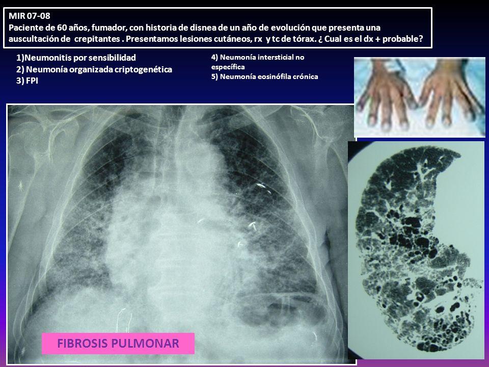 FIBROSIS PULMONAR MIR 07-08 Paciente de 60 años, fumador, con historia de disnea de un año de evolución que presenta una auscultación de crepitantes.
