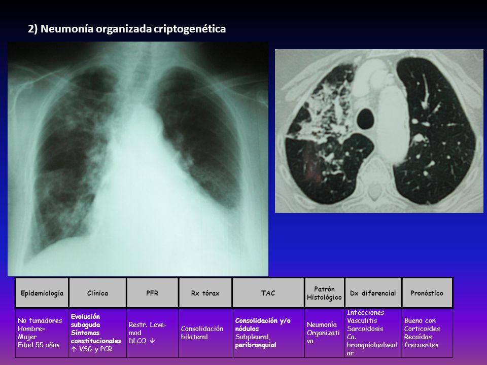 2) Neumonía organizada criptogenética EpidemiologíaClínicaPFRRx tóraxTAC Patrón Histológico Dx diferencialPronóstico No fumadores Hombre= Mujer Edad 5