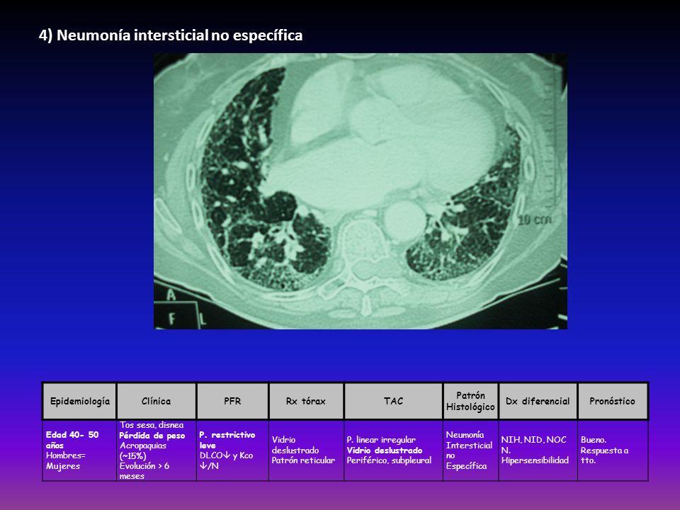 4) Neumonía intersticial no específica EpidemiologíaClínicaPFRRx tóraxTAC Patrón Histológico Dx diferencialPronóstico Edad 40- 50 años Hombres= Mujere
