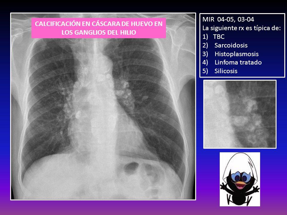 MIR 04-05, 03-04 La siguiente rx es típica de: 1)TBC 2) Sarcoidosis 3) Histoplasmosis 4) Linfoma tratado 5) Silicosis CALCIFICACIÓN EN CÁSCARA DE HUEV