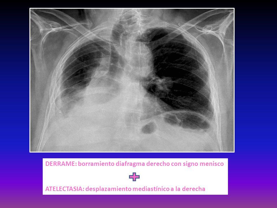 DERRAME: borramiento diafragma derecho con signo menisco ATELECTASIA: desplazamiento mediastínico a la derecha