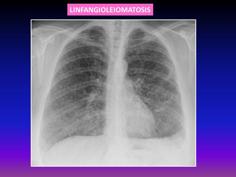 LINFANGIOLEIOMATOSIS