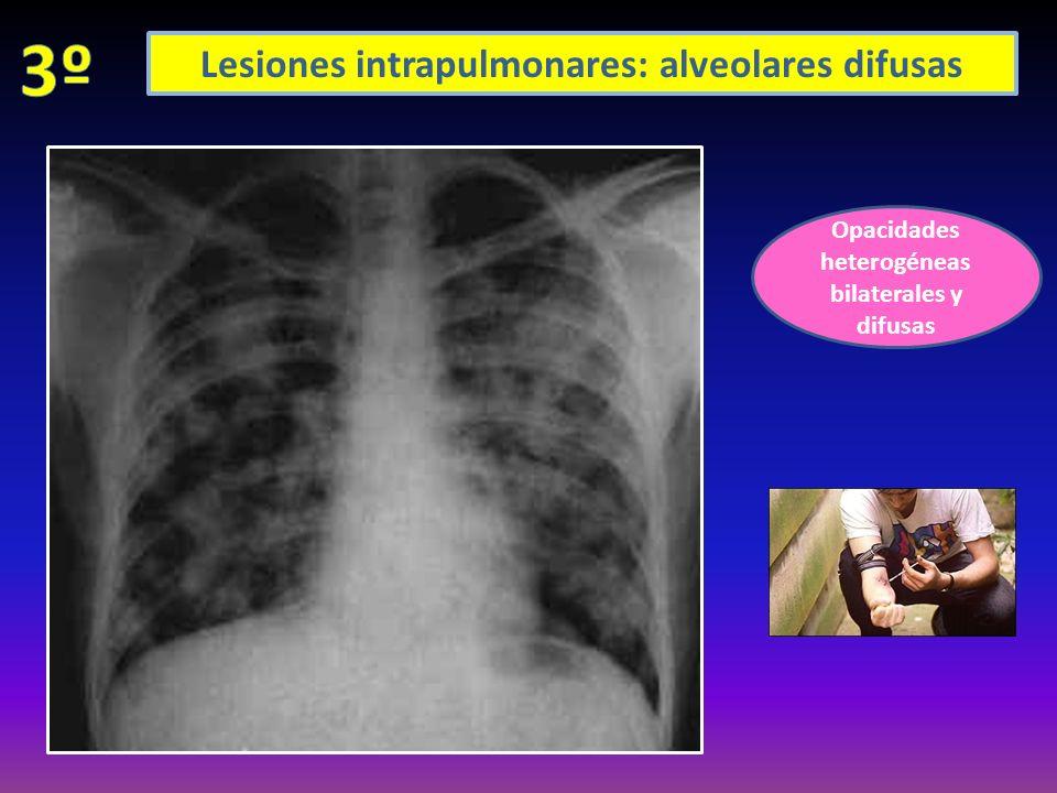 Opacidades alveolares bilaterales perihiliares Cardiomegalia Derrame pleural bilateral, + en izq EDEMA AGUDO DE PULMÓN CARDIOGÉNICO En los no cardiogénicos corazón normal!!!