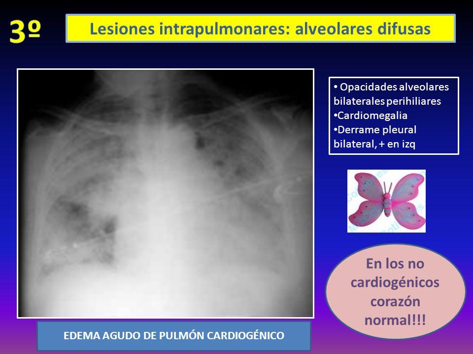 Opacidades alveolares bilaterales perihiliares Cardiomegalia Derrame pleural bilateral, + en izq EDEMA AGUDO DE PULMÓN CARDIOGÉNICO En los no cardiogé