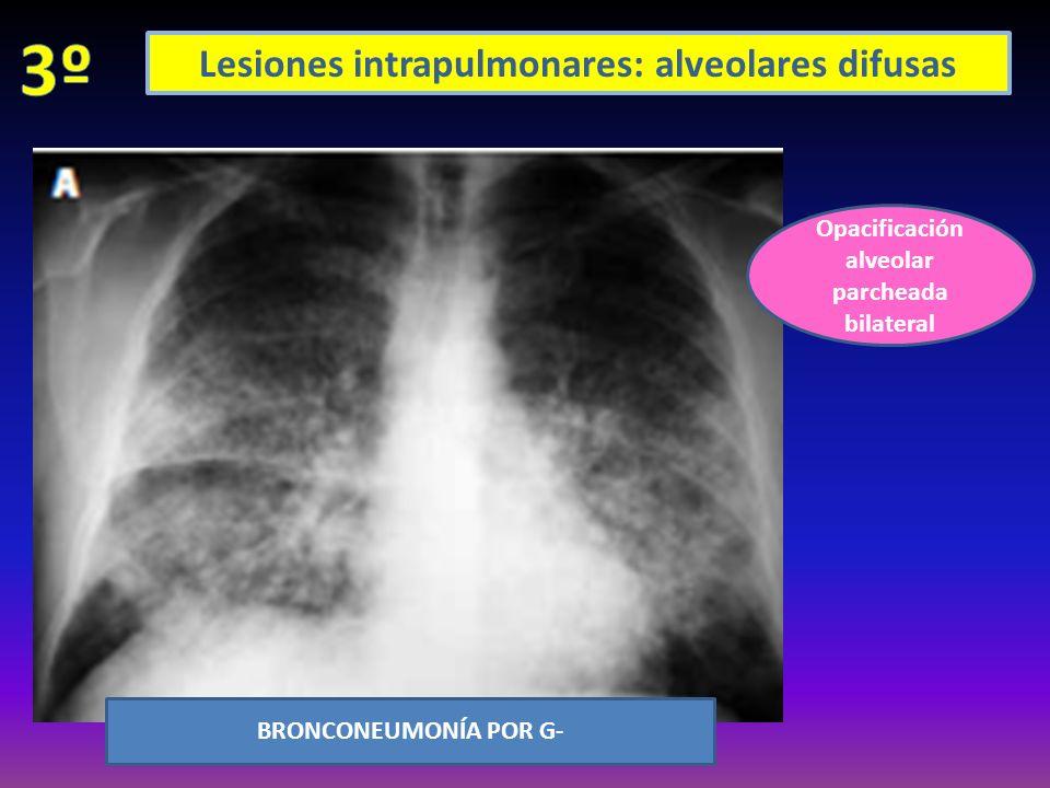 Lesiones intrapulmonares: alveolares difusas Opacificación alveolar parcheada bilateral BRONCONEUMONÍA POR G-