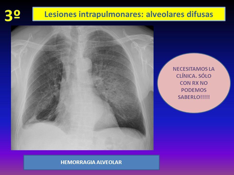 Lesiones intrapulmonares: alveolares difusas HEMORRAGIA ALVEOLAR NECESITAMOS LA CLÍNICA. SÓLO CON RX NO PODEMOS SABERLO!!!!!