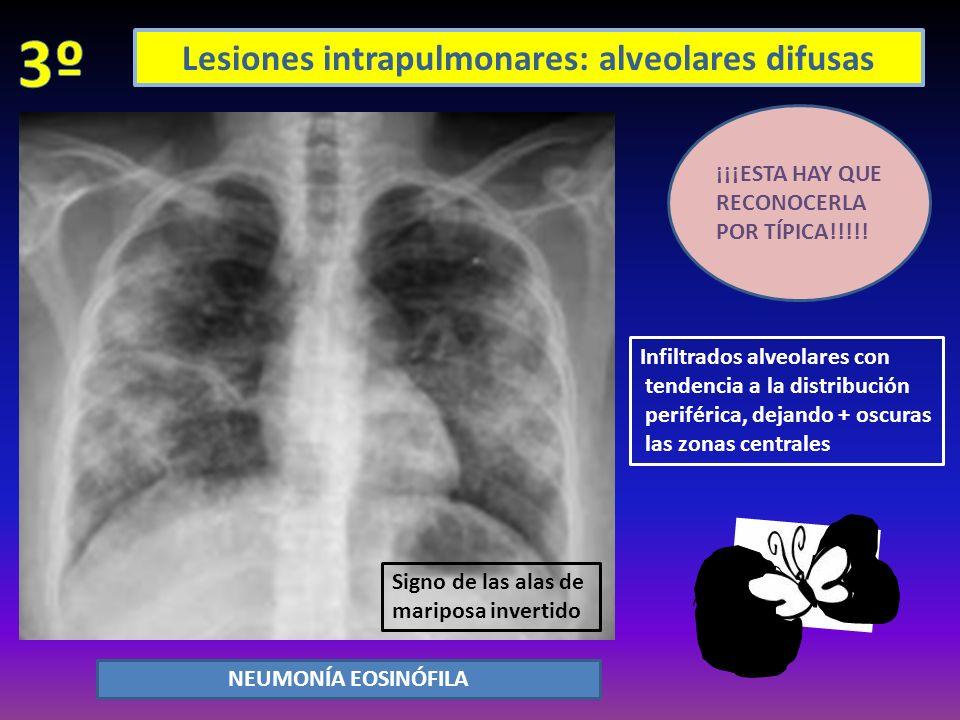 Lesiones intrapulmonares: alveolares difusas Opacificación bilateral, generalizada, parcheada y mal definida SIN CARDIOMEGALIA NI DERRAME PLEURAL (lo + frec) Puede haber broncograma Los cambios rx pueden aparecer 12 horas tras los síntomas o + tarde.