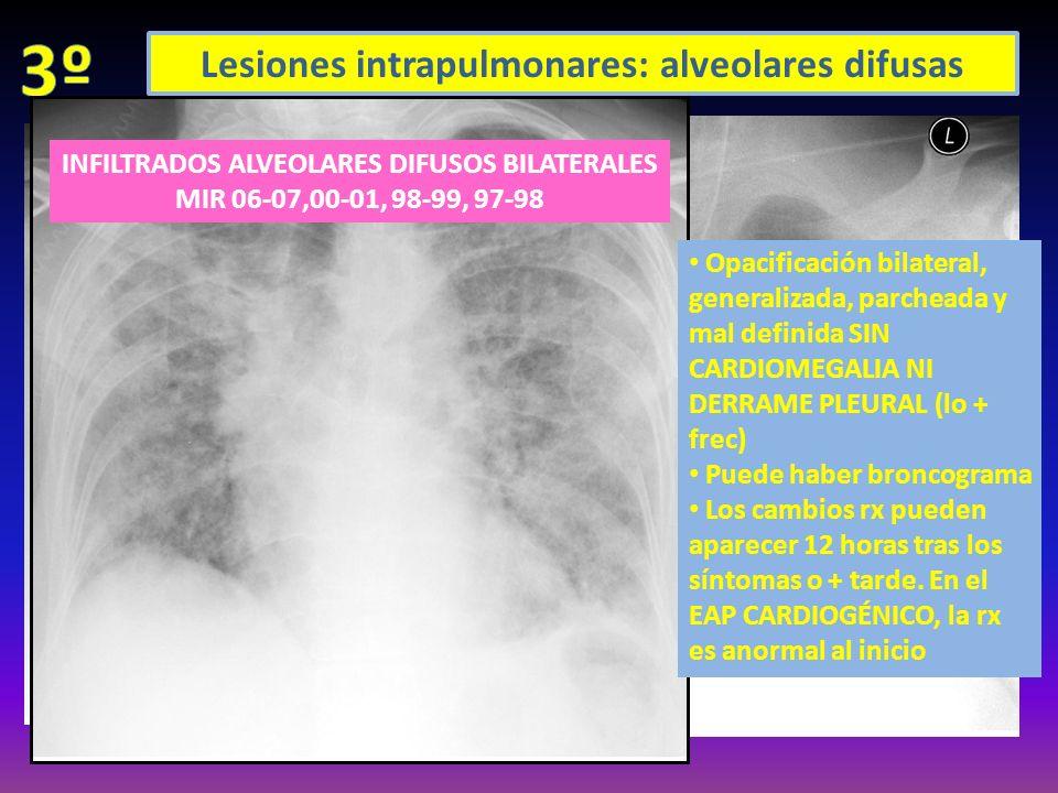 Lesiones intrapulmonares: alveolares difusas Opacificación bilateral, generalizada, parcheada y mal definida SIN CARDIOMEGALIA NI DERRAME PLEURAL (lo