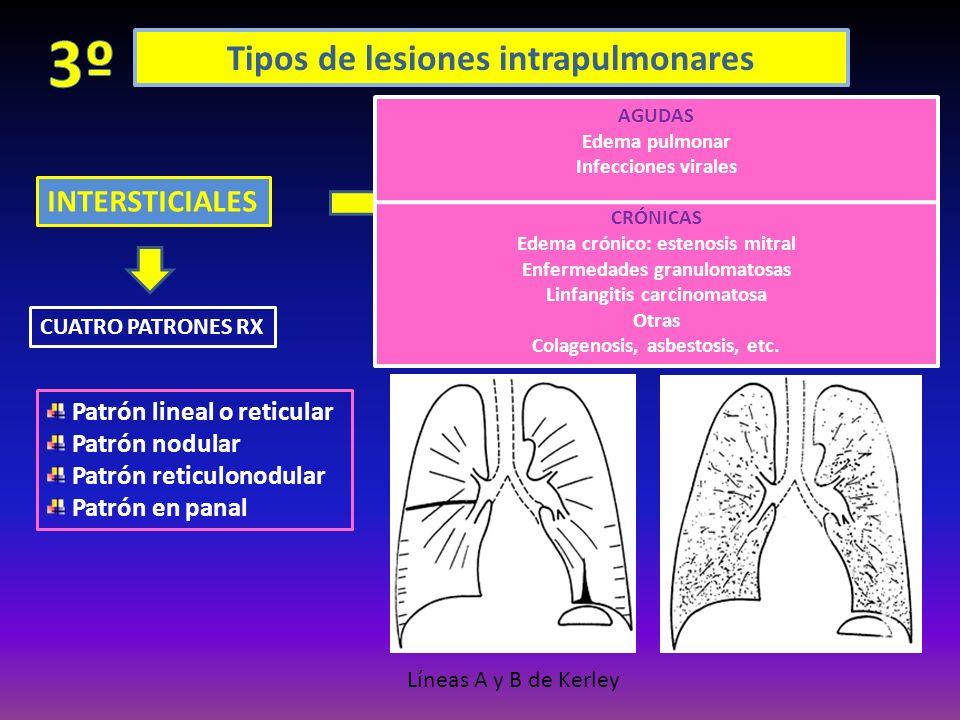 Tipos de lesiones intrapulmonares INTERSTICIALES Si bien puede haber enfermedades localizadas, el patrón intersticial generalmente es difuso, porque l