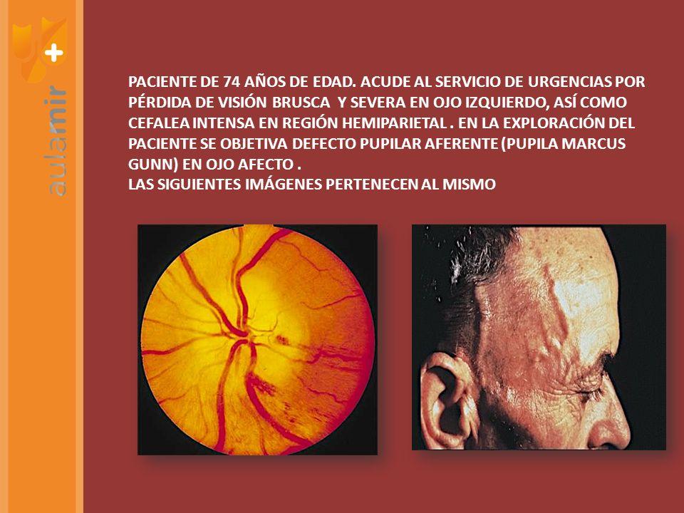 PACIENTE DE 74 AÑOS DE EDAD. ACUDE AL SERVICIO DE URGENCIAS POR PÉRDIDA DE VISIÓN BRUSCA Y SEVERA EN OJO IZQUIERDO, ASÍ COMO CEFALEA INTENSA EN REGIÓN