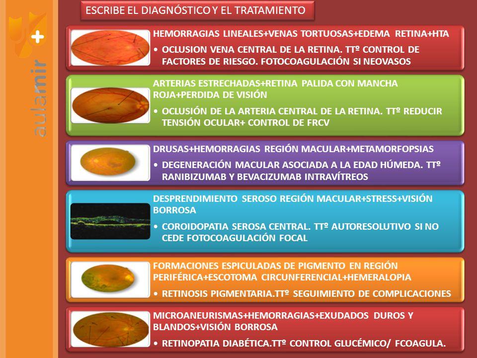 HEMORRAGIAS LINEALES+VENAS TORTUOSAS+EDEMA RETINA+HTA OCLUSION VENA CENTRAL DE LA RETINA. TTº CONTROL DE FACTORES DE RIESGO. FOTOCOAGULACIÓN SI NEOVAS