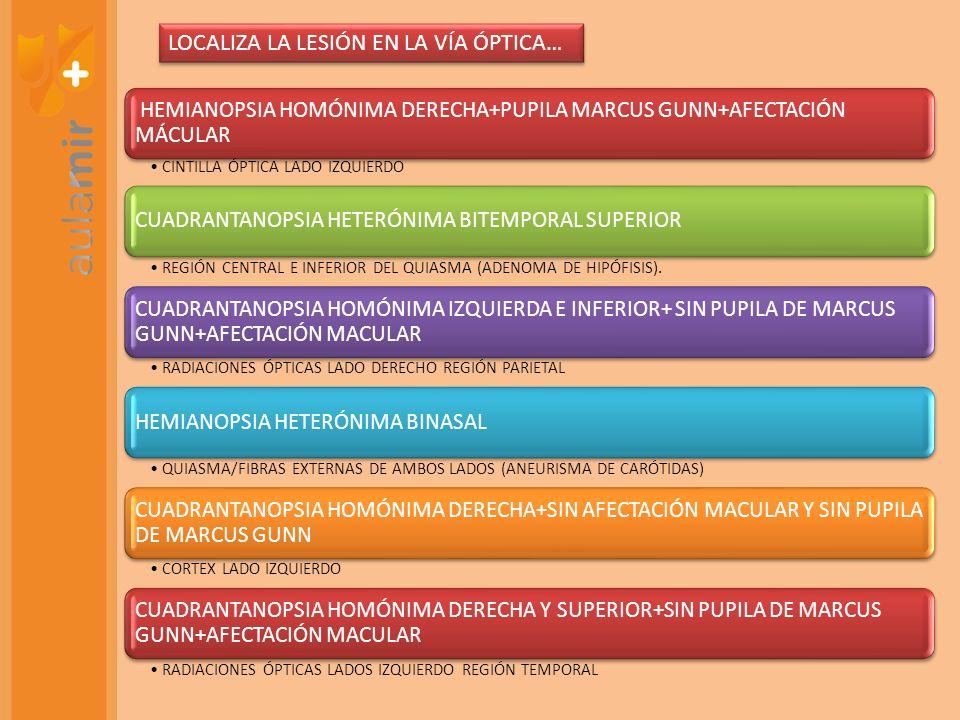 HEMIANOPSIA HOMÓNIMA DERECHA+PUPILA MARCUS GUNN+AFECTACIÓN MÁCULAR CINTILLA ÓPTICA LADO IZQUIERDO CUADRANTANOPSIA HETERÓNIMA BITEMPORAL SUPERIOR REGIÓ