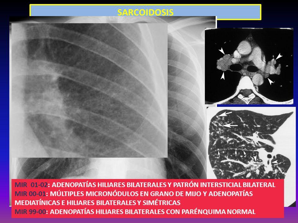 SARCOIDOSIS MIR 01-02: ADENOPATÍAS HILIARES BILATERALES Y PATRÓN INTERSTICIAL BILATERAL MIR 00-01: MÚLTIPLES MICRONÓDULOS EN GRANO DE MIJO Y ADENOPATÍ