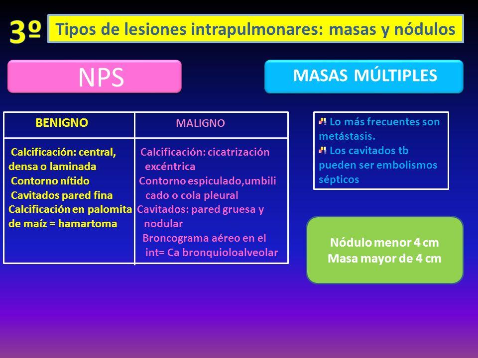 Tipos de lesiones intrapulmonares: masas y nódulos NPS MASAS MÚLTIPLES BENIGNO MALIGNO Calcificación: central, Calcificación: cicatrización densa o la