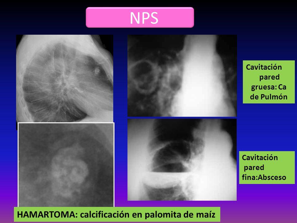 NPS HAMARTOMA: calcificación en palomita de maíz Cavitación pared fina:Absceso Cavitación pared gruesa: Ca de Pulmón