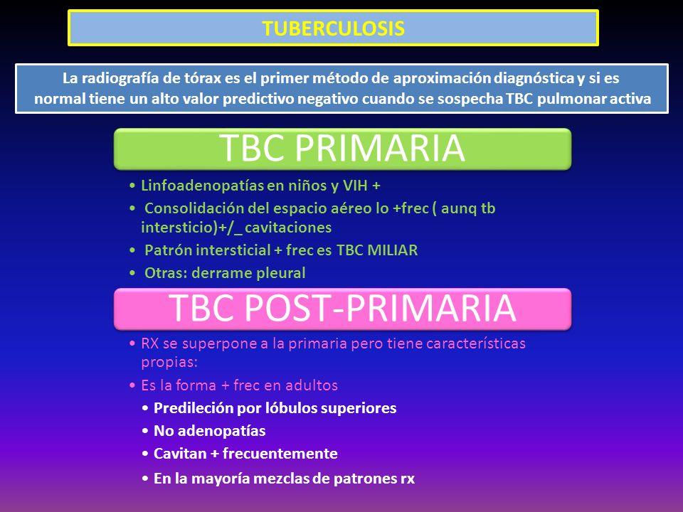 TUBERCULOSIS La radiografía de tórax es el primer método de aproximación diagnóstica y si es normal tiene un alto valor predictivo negativo cuando se