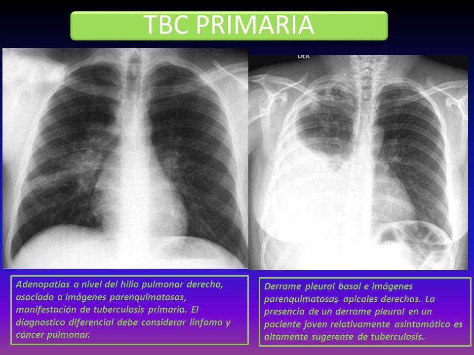TBC PRIMARIA Derrame pleural basal e imágenes parenquimatosas apicales derechas. La presencia de un derrame pleural en un paciente joven relativamente